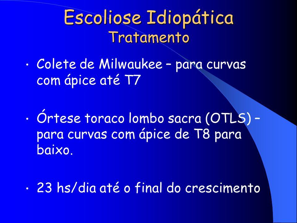 Escoliose Idiopática Tratamento Colete de Milwaukee – para curvas com ápice até T7 Órtese toraco lombo sacra (OTLS) – para curvas com ápice de T8 para