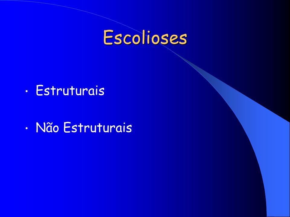 Escolioses não estruturais (tratamento dirigido para causa básica) Posturais Inflamatórias Discrepância de MMII Contratura ao nível do quadril Histéricas Irritação nervosa (hérnia discal, tumores)