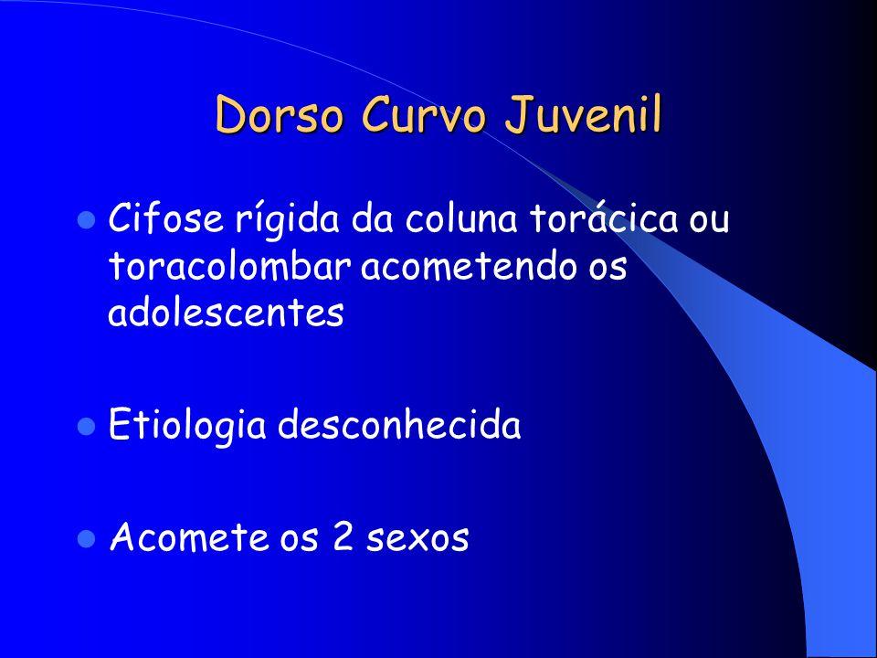 Dorso Curvo Juvenil Cifose rígida da coluna torácica ou toracolombar acometendo os adolescentes Etiologia desconhecida Acomete os 2 sexos