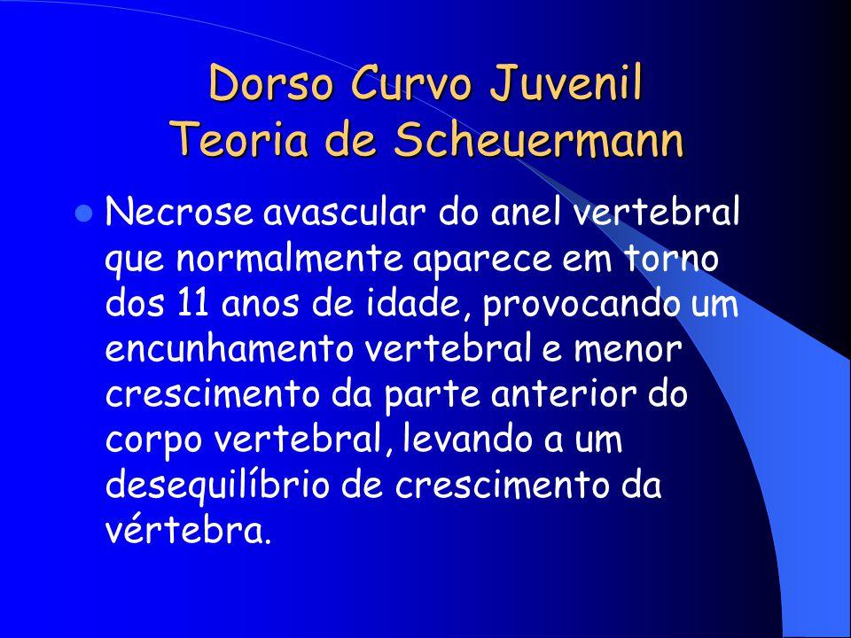 Dorso Curvo Juvenil Teoria de Scheuermann Necrose avascular do anel vertebral que normalmente aparece em torno dos 11 anos de idade, provocando um enc