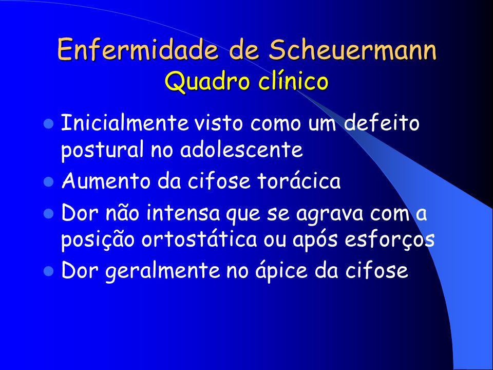 Enfermidade de Scheuermann Quadro clínico Inicialmente visto como um defeito postural no adolescente Aumento da cifose torácica Dor não intensa que se