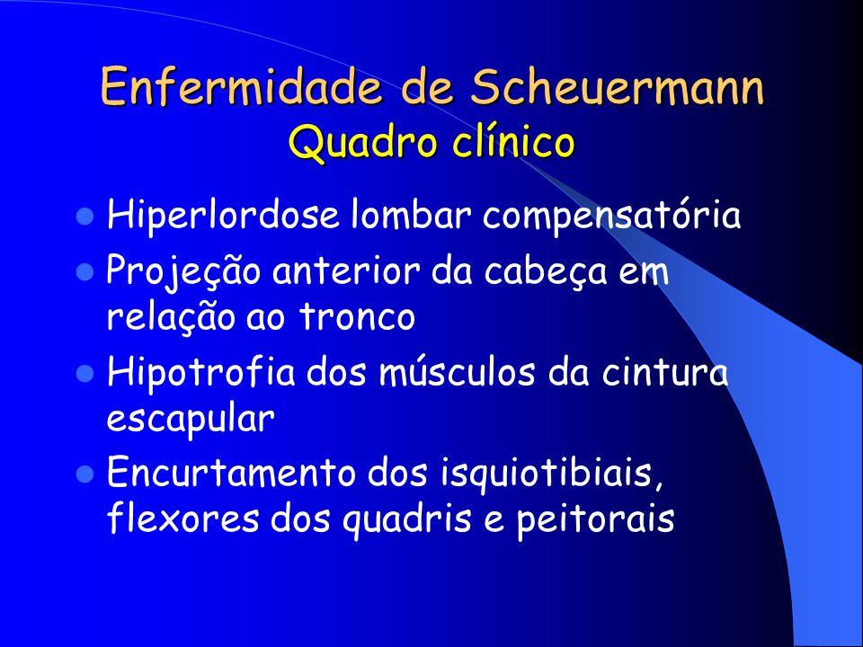 Enfermidade de Scheuermann Quadro clínico Hiperlordose lombar compensatória Projeção anterior da cabeça em relação ao tronco Hipotrofia dos músculos d
