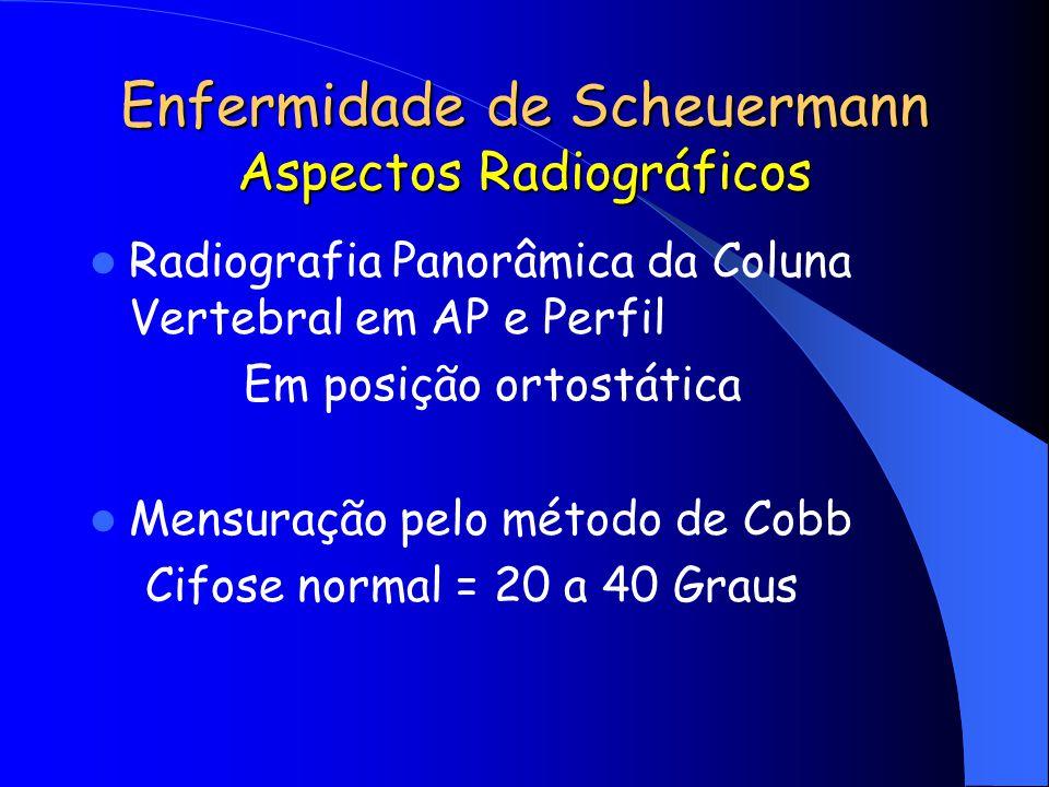 Enfermidade de Scheuermann Aspectos Radiográficos Radiografia Panorâmica da Coluna Vertebral em AP e Perfil Em posição ortostática Mensuração pelo mét