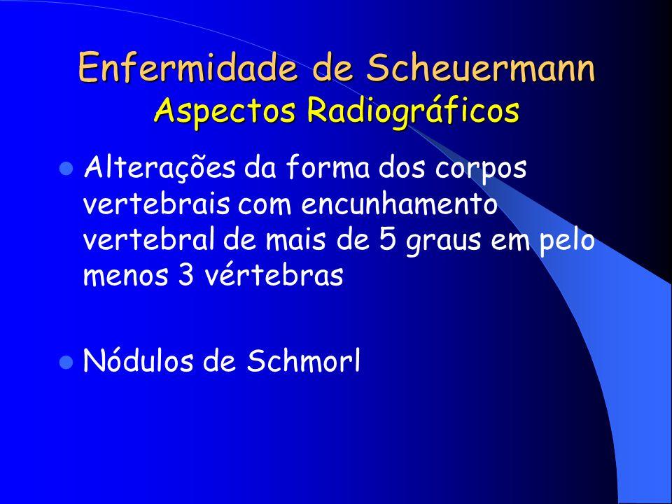 Enfermidade de Scheuermann Aspectos Radiográficos Alterações da forma dos corpos vertebrais com encunhamento vertebral de mais de 5 graus em pelo meno