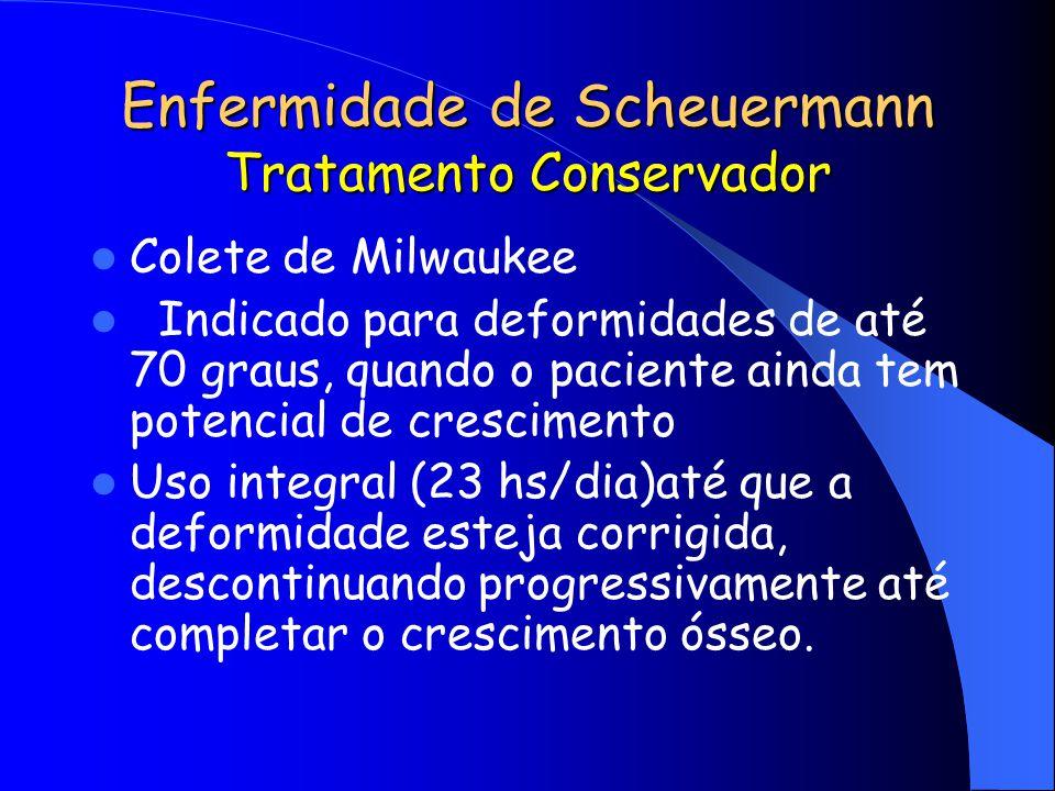Enfermidade de Scheuermann Tratamento Conservador Colete de Milwaukee Indicado para deformidades de até 70 graus, quando o paciente ainda tem potencia