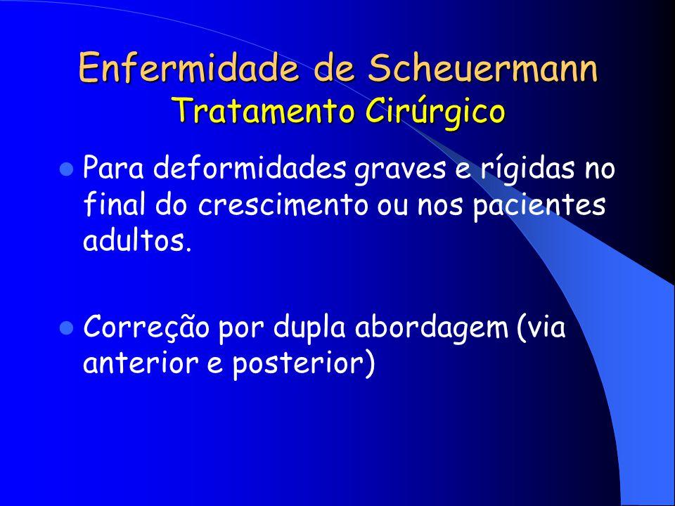Enfermidade de Scheuermann Tratamento Cirúrgico Para deformidades graves e rígidas no final do crescimento ou nos pacientes adultos. Correção por dupl