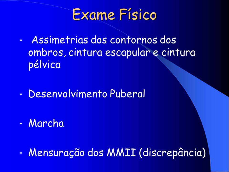 Exame Físico Assimetrias dos contornos dos ombros, cintura escapular e cintura pélvica Desenvolvimento Puberal Marcha Mensuração dos MMII (discrepânci