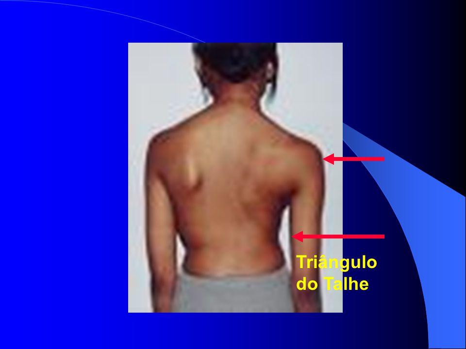 Enfermidade de Scheuermann Aspectos Radiográficos Alterações da forma dos corpos vertebrais com encunhamento vertebral de mais de 5 graus em pelo menos 3 vértebras Nódulos de Schmorl