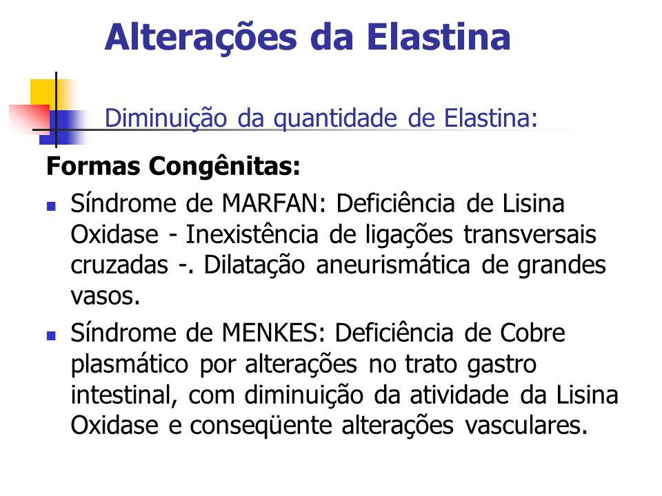 Alterações da Elastina Diminuição da quantidade de Elastina: Formas Congênitas: Síndrome de MARFAN: Deficiência de Lisina Oxidase - Inexistência de ligações transversais cruzadas -.
