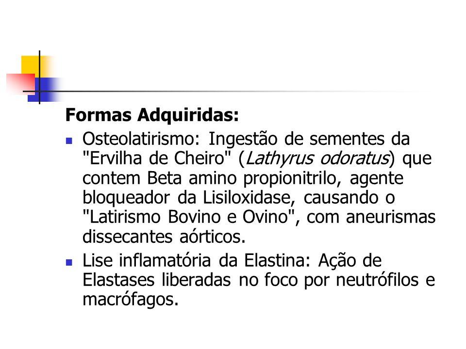 Formas Adquiridas: Osteolatirismo: Ingestão de sementes da Ervilha de Cheiro (Lathyrus odoratus) que contem Beta amino propionitrilo, agente bloqueador da Lisiloxidase, causando o Latirismo Bovino e Ovino , com aneurismas dissecantes aórticos.