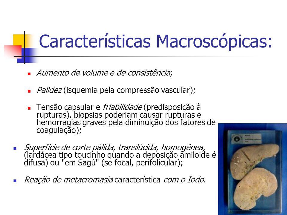 Características Macroscópicas: Aumento de volume e de consistência; Palidez (isquemia pela compressão vascular); Tensão capsular e friabilidade (predisposição à rupturas).