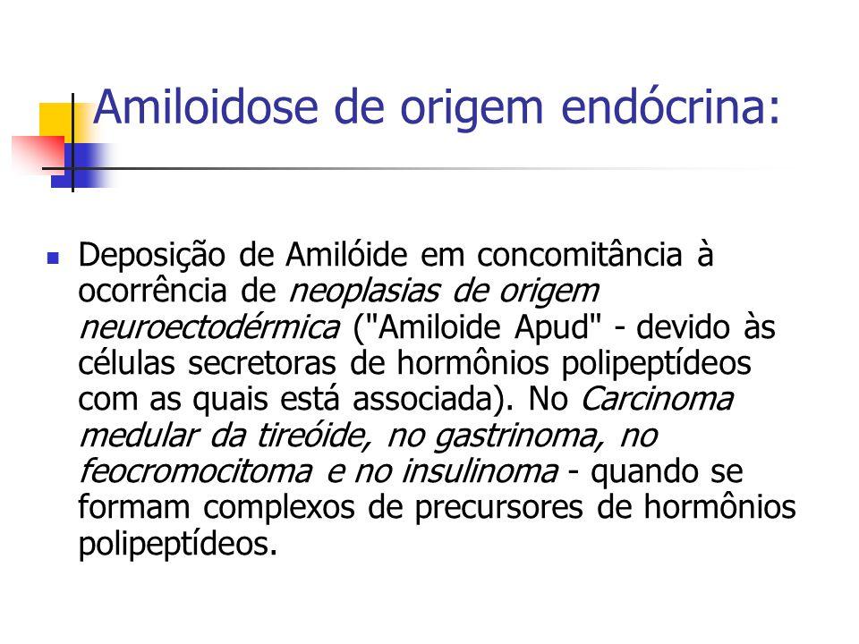 Amiloidose de origem endócrina: Deposição de Amilóide em concomitância à ocorrência de neoplasias de origem neuroectodérmica ( Amiloide Apud - devido às células secretoras de hormônios polipeptídeos com as quais está associada).