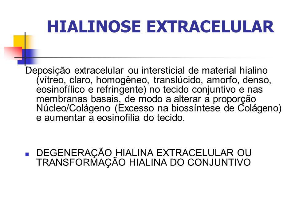 HIALINOSE EXTRACELULAR Deposição extracelular ou intersticial de material hialino (vítreo, claro, homogêneo, translúcido, amorfo, denso, eosinofílico e refringente) no tecido conjuntivo e nas membranas basais, de modo a alterar a proporção Núcleo/Colágeno (Excesso na biossíntese de Colágeno) e aumentar a eosinofilia do tecido.
