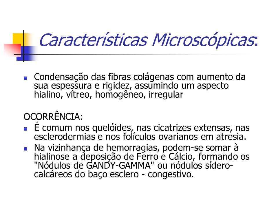 Características Microscópicas: Condensação das fibras colágenas com aumento da sua espessura e rigidez, assumindo um aspecto hialino, vítreo, homogêneo, irregular OCORRÊNCIA: É comum nos quelóides, nas cicatrizes extensas, nas esclerodermias e nos folículos ovarianos em atresia.