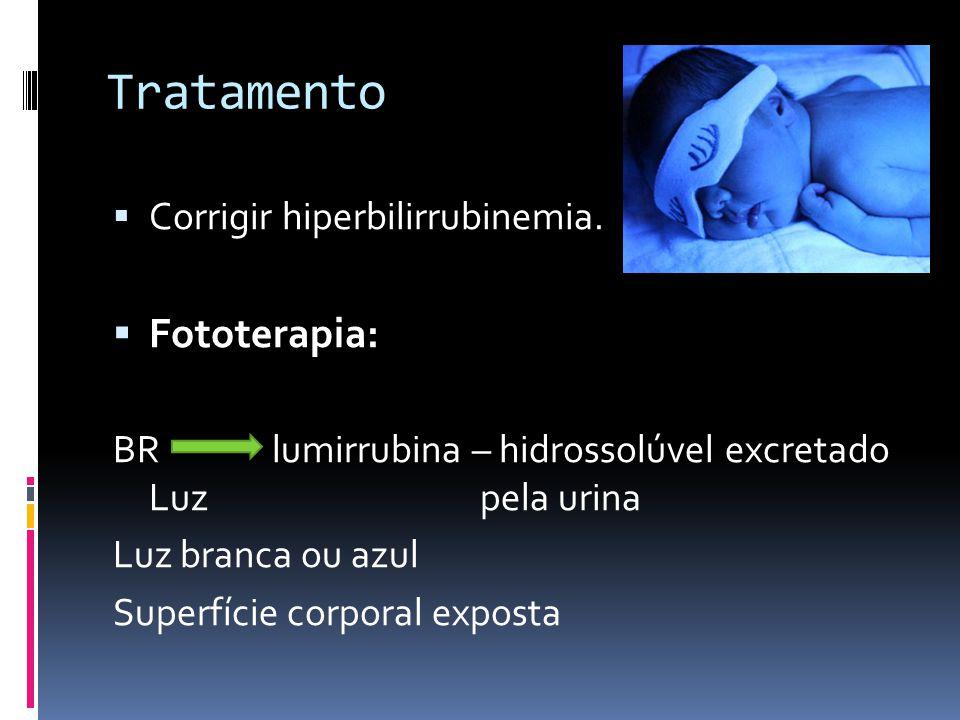 Tratamento Corrigir hiperbilirrubinemia. Fototerapia: BR lumirrubina – hidrossolúvel excretado Luz pela urina Luz branca ou azul Superfície corporal e