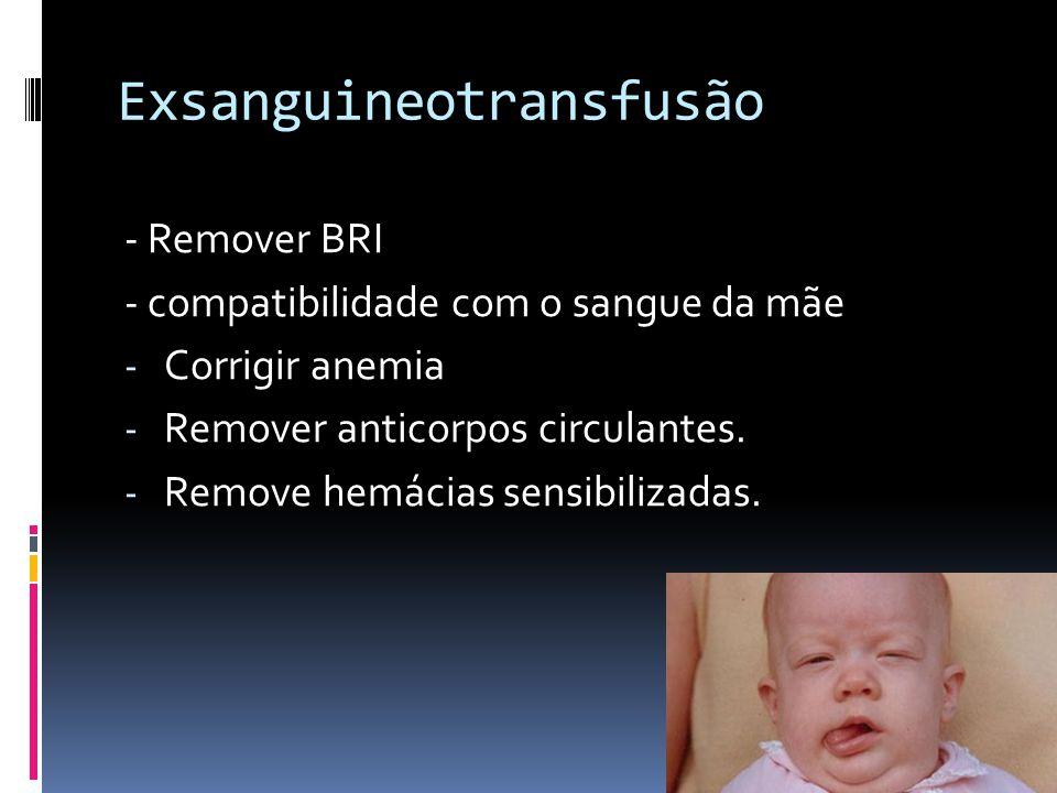 Exsanguineotransfusão - Remover BRI - compatibilidade com o sangue da mãe - Corrigir anemia - Remover anticorpos circulantes. - Remove hemácias sensib