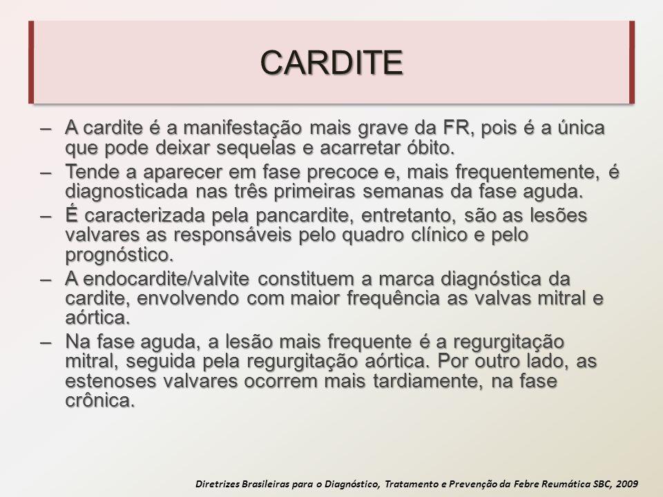 Diretrizes Brasileiras para o Diagnóstico, Tratamento e Prevenção da Febre Reumática SBC, 2009 CARDITE –A cardite é a manifestação mais grave da FR, p