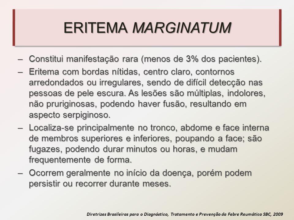 Diretrizes Brasileiras para o Diagnóstico, Tratamento e Prevenção da Febre Reumática SBC, 2009 ERITEMA MARGINATUM –Constitui manifestação rara (menos