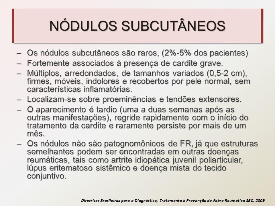 Diretrizes Brasileiras para o Diagnóstico, Tratamento e Prevenção da Febre Reumática SBC, 2009 NÓDULOS SUBCUTÂNEOS –Os nódulos subcutâneos são raros,