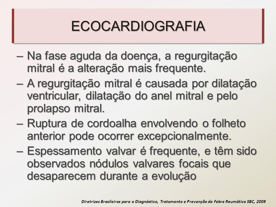 Diretrizes Brasileiras para o Diagnóstico, Tratamento e Prevenção da Febre Reumática SBC, 2009 ECOCARDIOGRAFIA –Na fase aguda da doença, a regurgitaçã