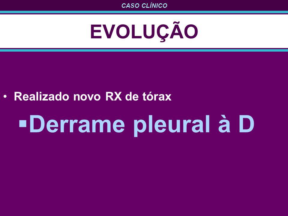 CASO CLÍNICO EVOLUÇÃO Realizado novo RX de tórax Derrame pleural à D