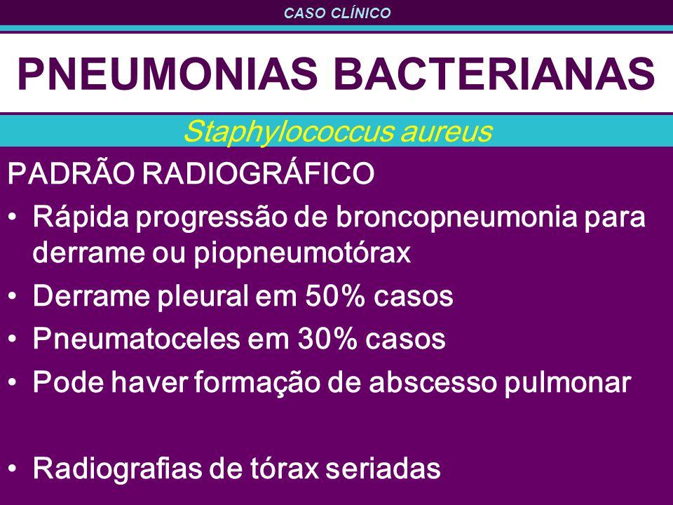CASO CLÍNICO PNEUMONIAS BACTERIANAS PADRÃO RADIOGRÁFICO Rápida progressão de broncopneumonia para derrame ou piopneumotórax Derrame pleural em 50% casos Pneumatoceles em 30% casos Pode haver formação de abscesso pulmonar Radiografias de tórax seriadas Staphylococcus aureus