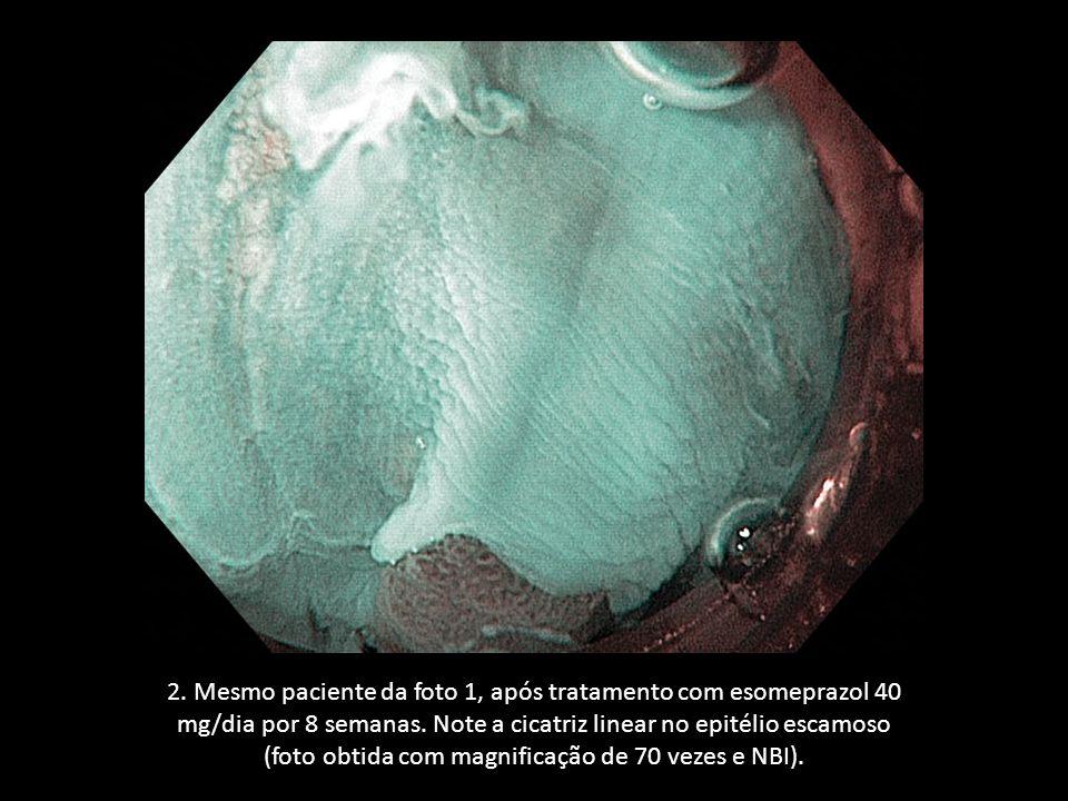 2. Mesmo paciente da foto 1, após tratamento com esomeprazol 40 mg/dia por 8 semanas. Note a cicatriz linear no epitélio escamoso (foto obtida com mag