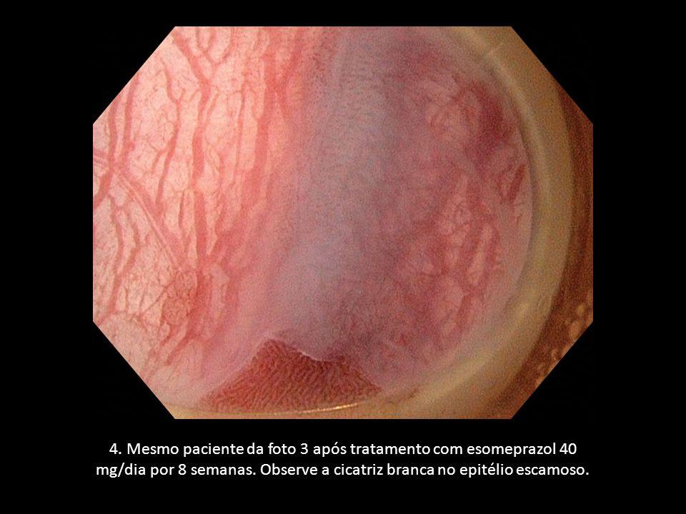 4. Mesmo paciente da foto 3 após tratamento com esomeprazol 40 mg/dia por 8 semanas. Observe a cicatriz branca no epitélio escamoso.