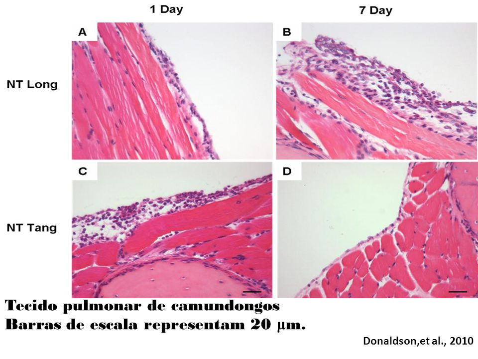 Tecido pulmonar de camundongos Barras de escala representam 20 μ m. Donaldson,et al., 2010