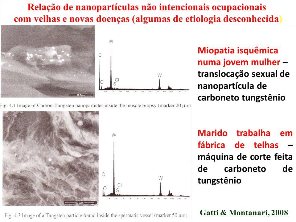 Pulmão de dentista com sarcoidose – Algumas partículas dentro do granuloma e no materal de clareamento dentário Gatti & Montanari, 2008