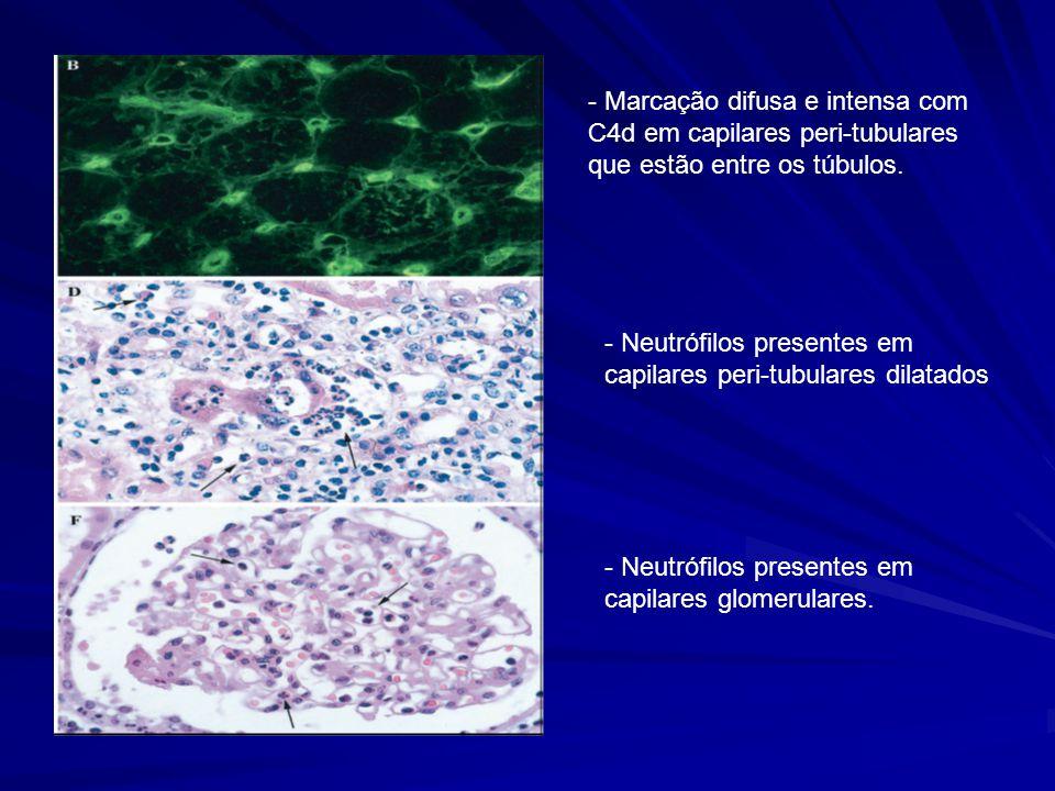 - Marcação difusa e intensa com C4d em capilares peri-tubulares que estão entre os túbulos. - Neutrófilos presentes em capilares peri-tubulares dilata