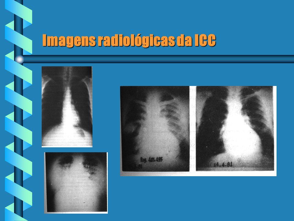 Imagens radiológicas da ICC