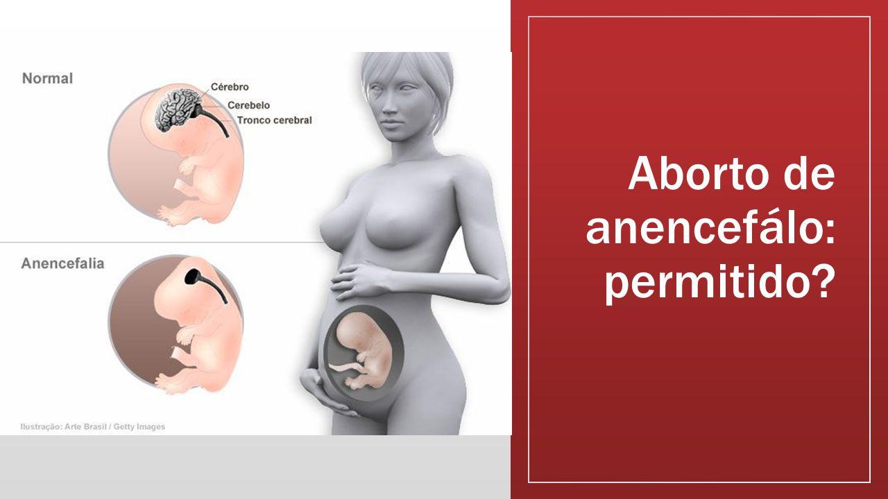 Aborto de anencefálo: permitido?