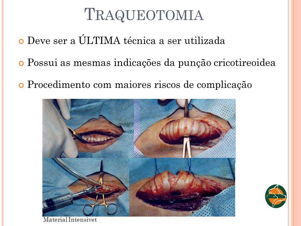 T RAQUEOTOMIA Deve ser a ÚLTIMA técnica a ser utilizada Possui as mesmas indicações da punção cricotireoidea Procedimento com maiores riscos de compli