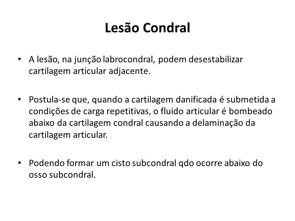 Lesão Condral A lesão, na junção labrocondral, podem desestabilizar cartilagem articular adjacente.