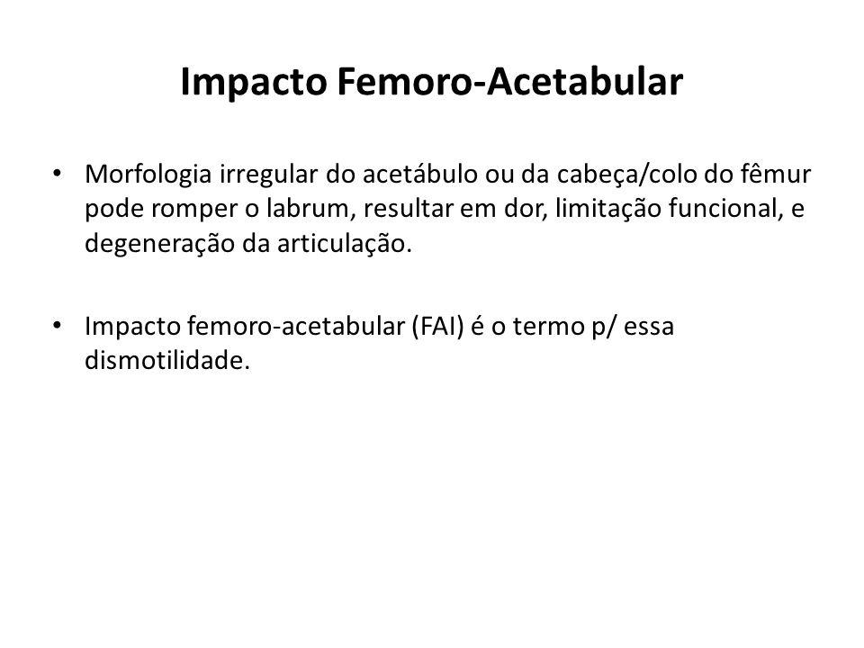 Impacto Femoro-Acetabular Morfologia irregular do acetábulo ou da cabeça/colo do fêmur pode romper o labrum, resultar em dor, limitação funcional, e degeneração da articulação.