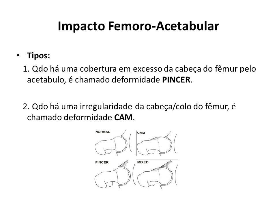 Impacto Femoro-Acetabular Tipos: 1.