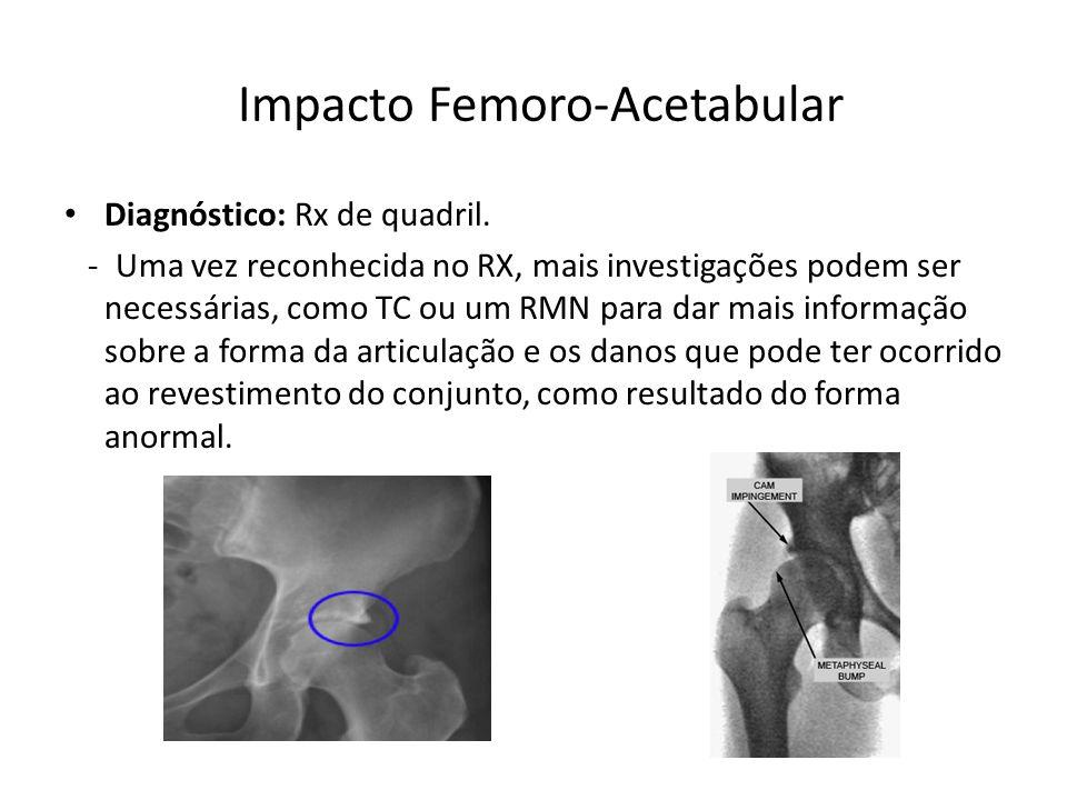 Impacto Femoro-Acetabular Diagnóstico: Rx de quadril.
