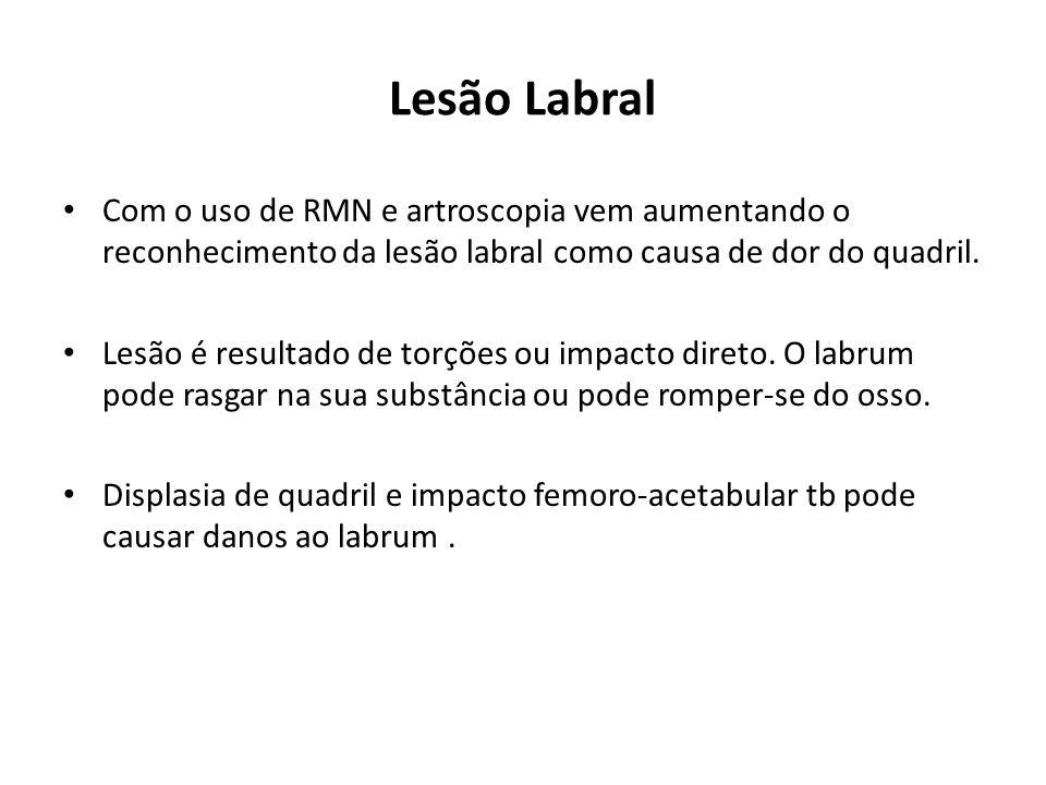 Lesão Labral Com o uso de RMN e artroscopia vem aumentando o reconhecimento da lesão labral como causa de dor do quadril.