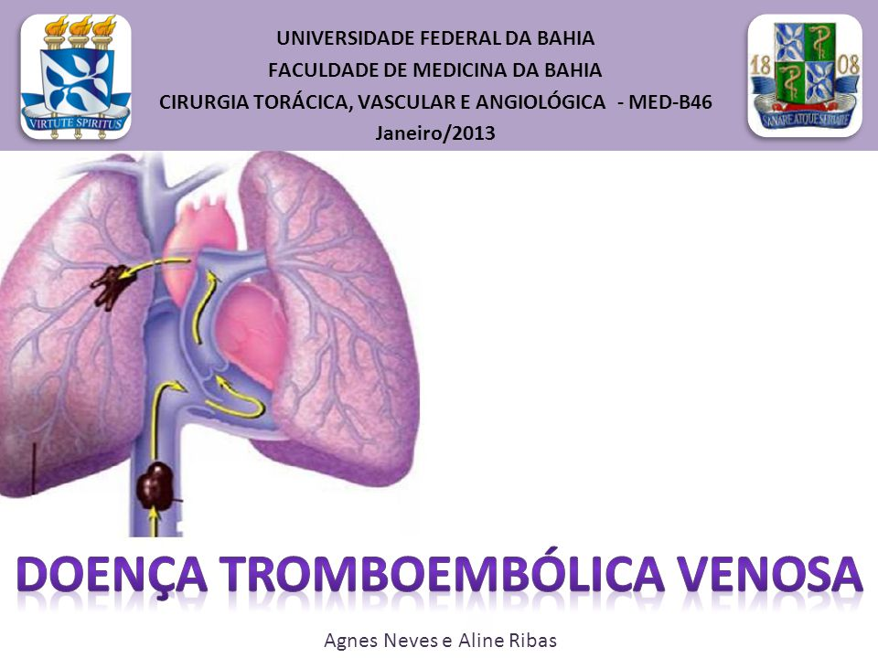 TEP- Sinais e Sintomas Colapso Circulatório (TEP maciço): se manifesta com quadro de choque ou hipotensão arterial, definida como a pressão arterial sistólica < que 90mmHg ou queda da pressão arterial que 40mmHg por mais de 15min, afastados arritmia, hipovolemia ou sepse Manifestções clínicas de IVD, com aumento da pressão venosa jugular e aumento do componente pulmonar de B2.