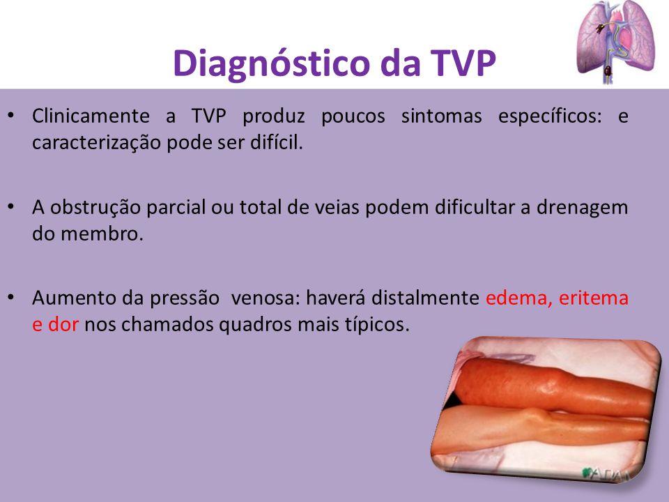 Diagnóstico da TVP Clinicamente a TVP produz poucos sintomas específicos: e caracterização pode ser difícil. A obstrução parcial ou total de veias pod