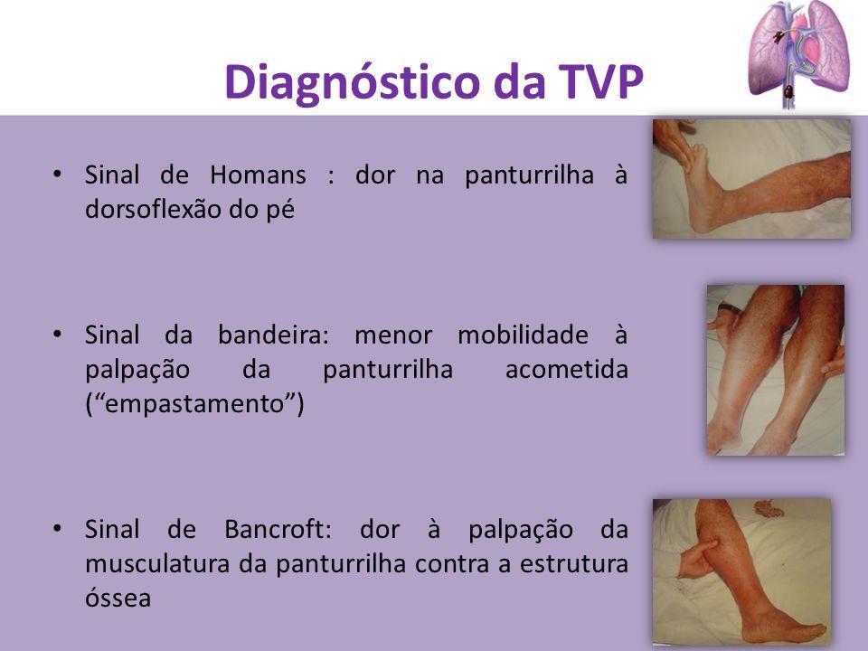 Diagnóstico da TVP Sinal de Homans : dor na panturrilha à dorsoflexão do pé Sinal da bandeira: menor mobilidade à palpação da panturrilha acometida (empastamento) Sinal de Bancroft: dor à palpação da musculatura da panturrilha contra a estrutura óssea