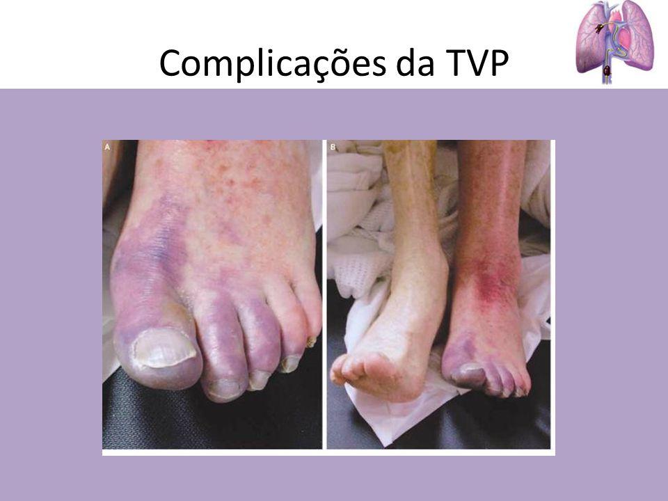 Complicações da TVP