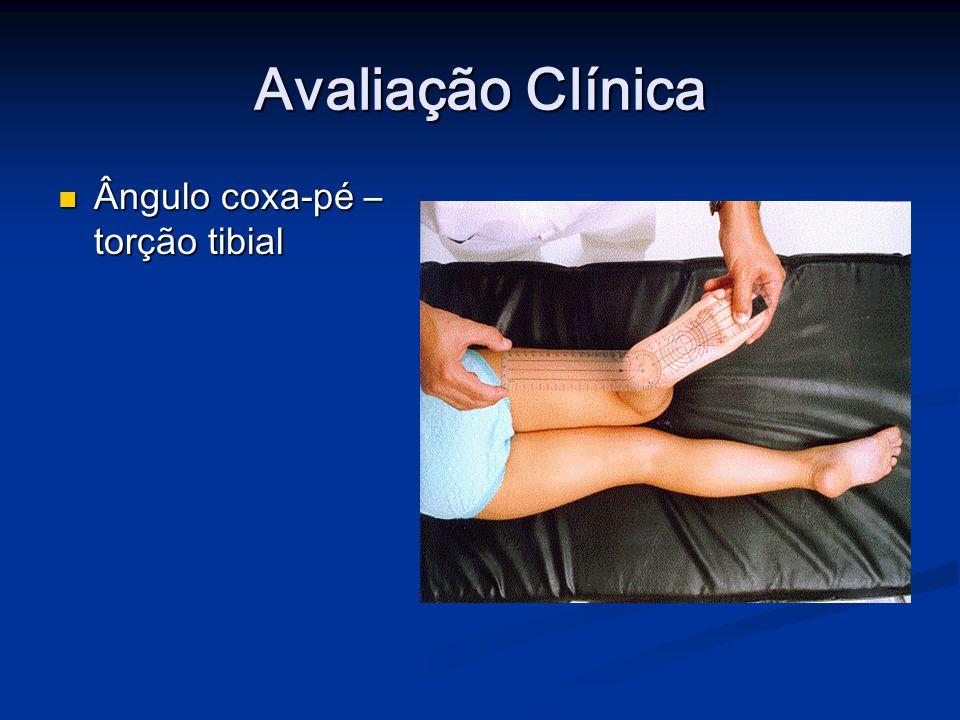 Avaliação Clínica Ângulo coxa-pé – torção tibial Ângulo coxa-pé – torção tibial