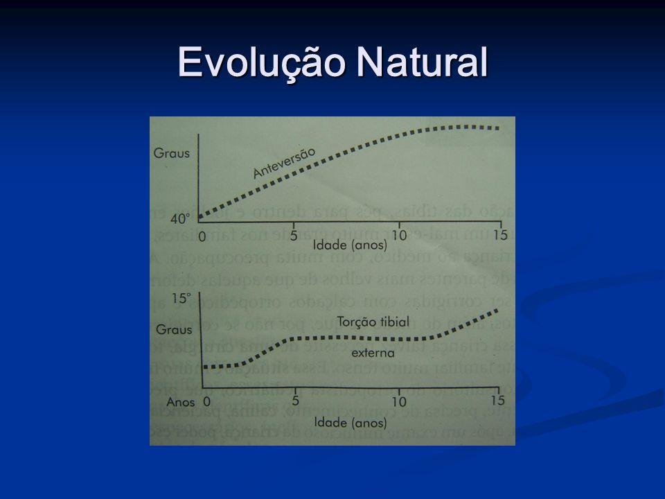 Avaliação Clínica Rotação externa do quadril – retroversão do fêmur; Rotação externa do quadril – retroversão do fêmur;