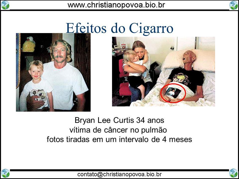 Efeitos do Cigarro Bryan Lee Curtis 34 anos vítima de câncer no pulmão fotos tiradas em um intervalo de 4 meses