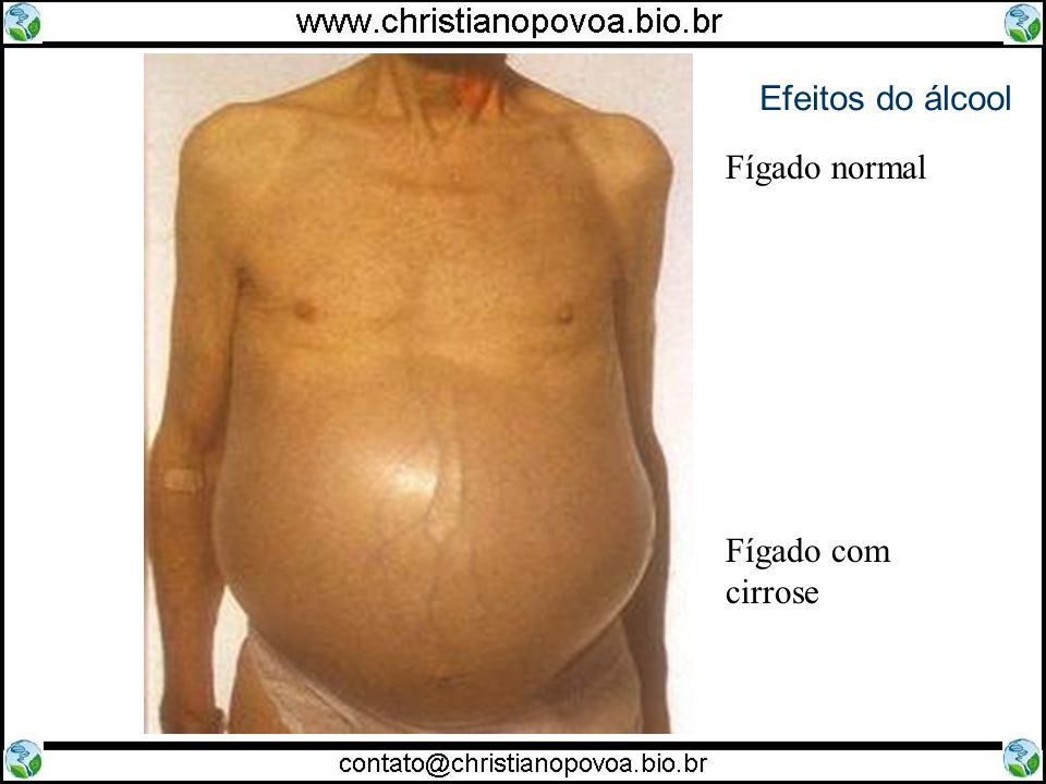 Efeitos do álcool Fígado normal Fígado com cirrose