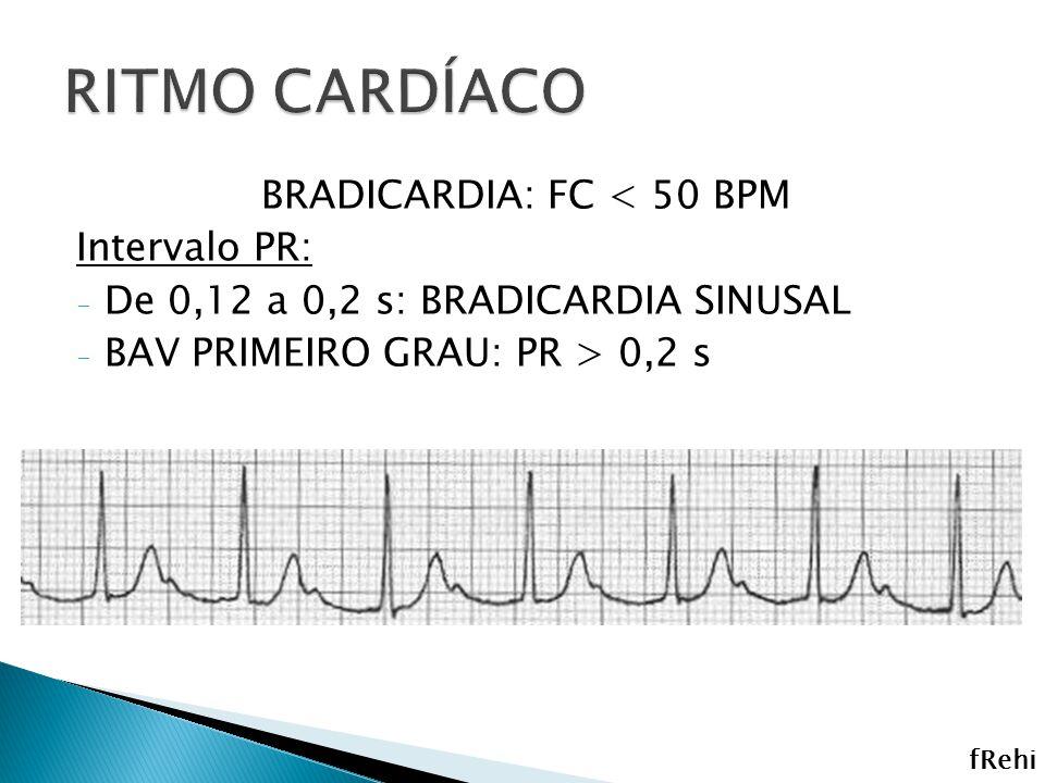 BRADICARDIA: FC < 50 BPM Intervalo PR: - De 0,12 a 0,2 s: BRADICARDIA SINUSAL - BAV PRIMEIRO GRAU: PR > 0,2 s fRehi
