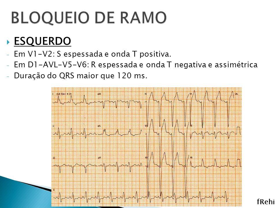 ESQUERDO - Em V1-V2: S espessada e onda T positiva. - Em D1-AVL-V5-V6: R espessada e onda T negativa e assimétrica - Duração do QRS maior que 120 ms.