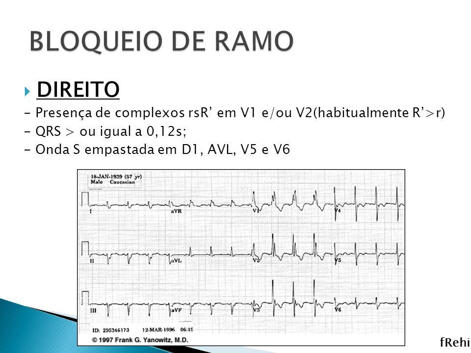 DIREITO - Presença de complexos rsR em V1 e/ou V2(habitualmente R>r) - QRS > ou igual a 0,12s; - Onda S empastada em D1, AVL, V5 e V6 fRehi